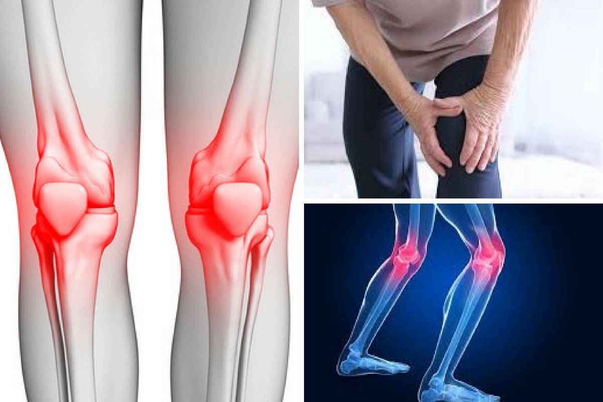 Askep osteoarthritis lutut